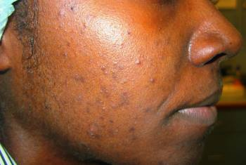 Acnée de la peau noire